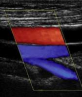 Carotid, DVT, Aorta, Leg vein mapping, Arterial Doppler, Renal Arteries, Renal Transplant